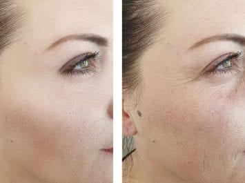 (قبل & بعد ( نتائج العلاجات